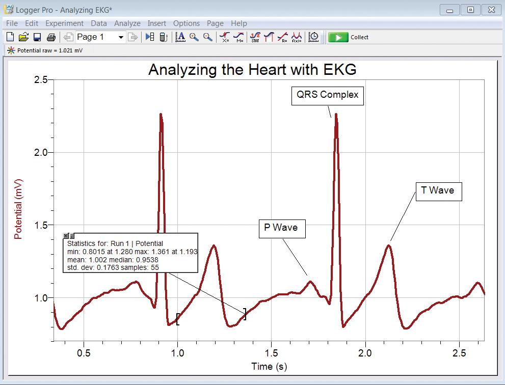 приклад збору даних датчика ЕКГ